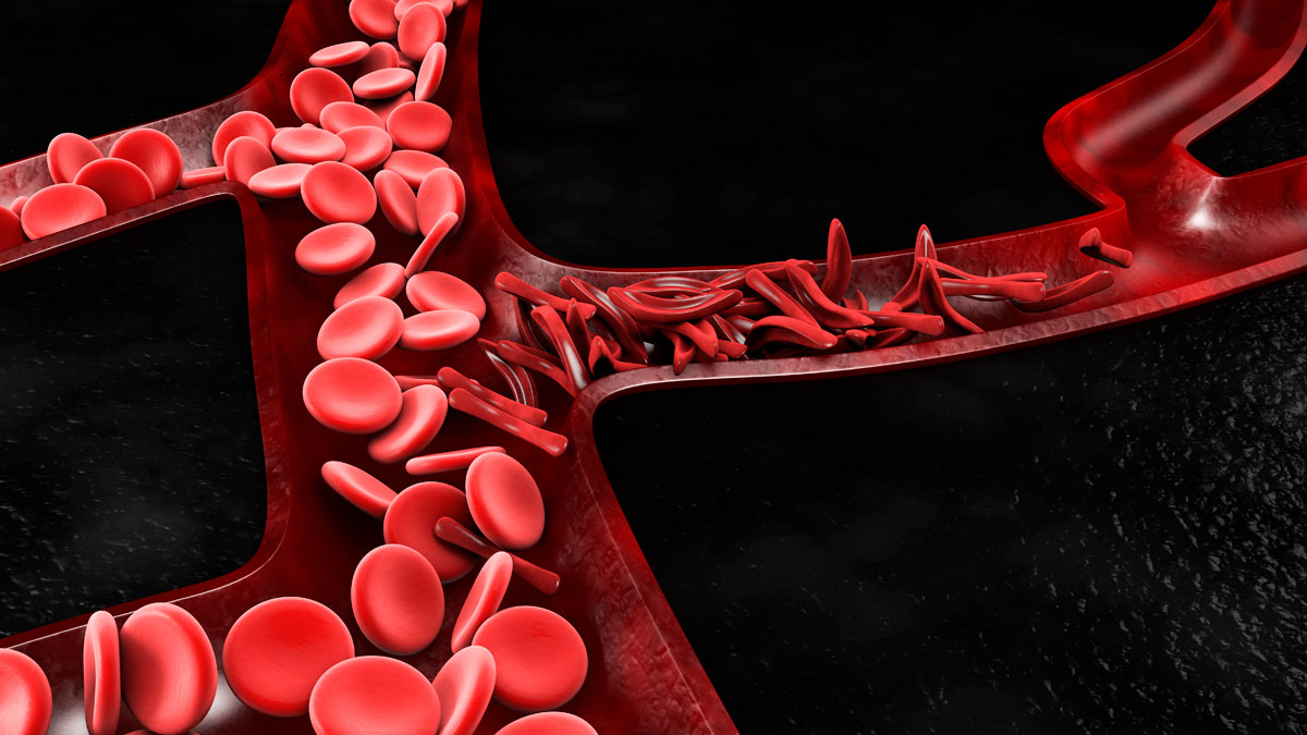 Anemia, sickle cell and normal red blood cell, 3d Illustration.