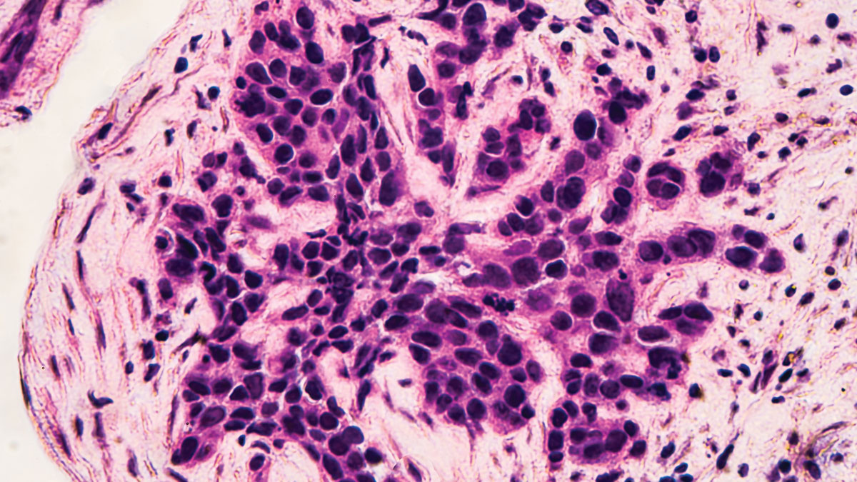 Breast Cancer Awareness: Microscopic image (photomicrograph) of core biopsy for infiltrating (invasive) ductal carcinoma, detected by screening mammogram. H & E stain.