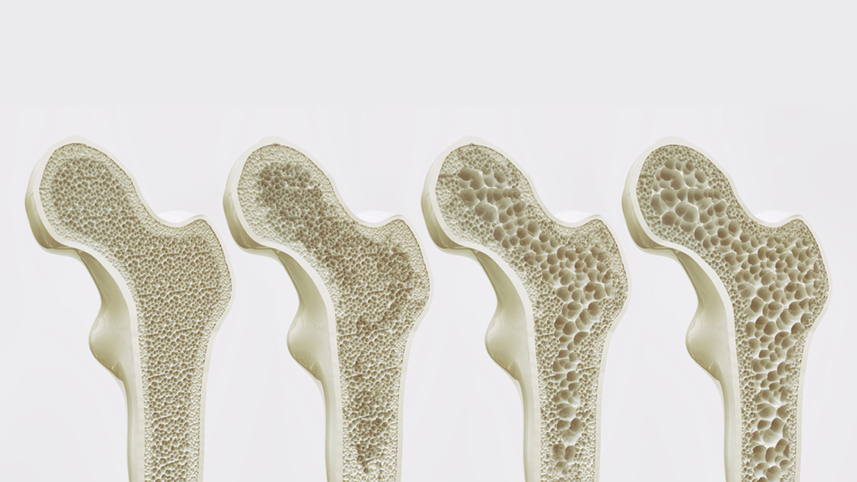 The four stages of osteoporosis - illustration - Illustration